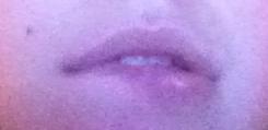 bijt lip